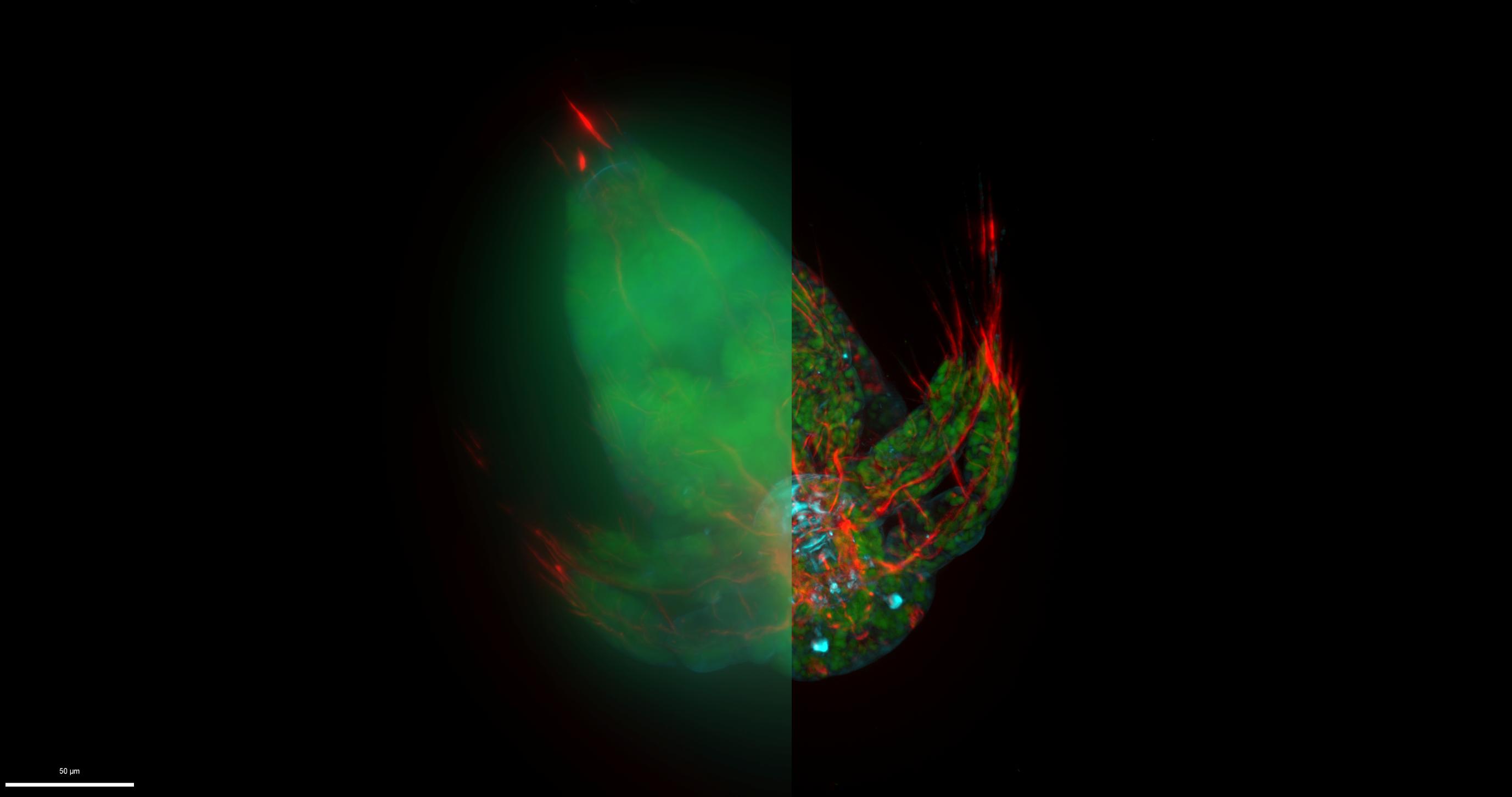 Nové mikroskopické systémy Leica THUNDER mění svět widefield mikroskopie